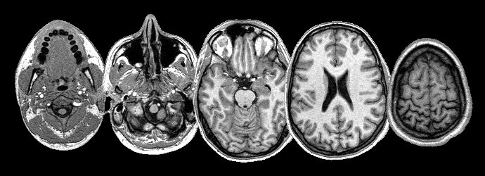 MRI Head 5 slices - Creative Commons